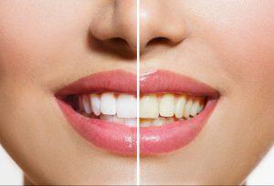 Gele tanden bleken goed of slecht?