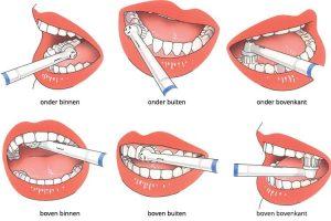 Tandenpoetsen: hoe doe je het goed?